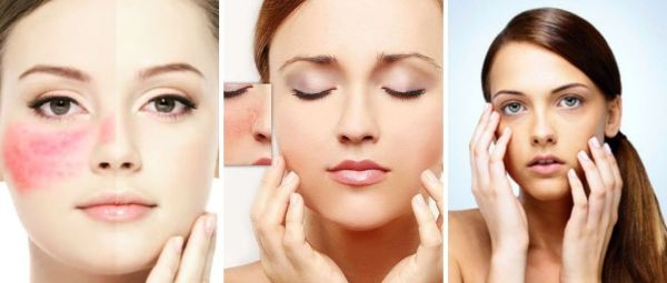How To Reduce Redness On Face In Marathi