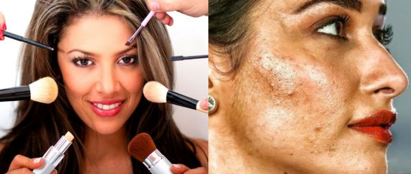 neven Skin Tone, Side Effects of Daily Makeup Use, uneven Skin Tone, everyday makeup, skin problems