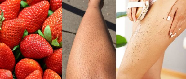 How to Get Rid of Strawberry Legs at Home tips in Hindi, How to Get Rid of Strawberry Legs, Strawberry Legs