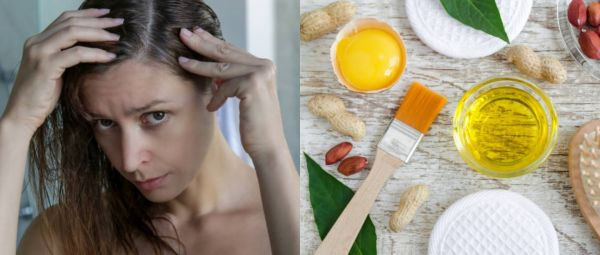 Hair Care, Dry Scalp cure, Home remedies for dry scalp
