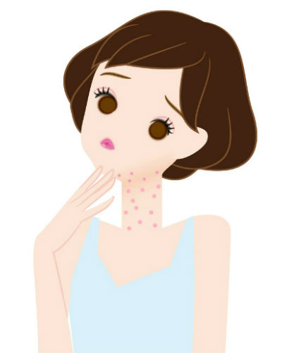 7 Weird Places Where We Get Acne - And How to Deal With It!
