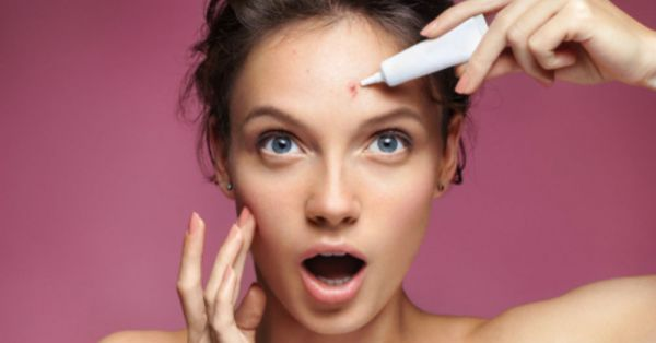 Woke Up With A Pimple Just Days Before Your Wedding? 9 Quick Fixes You Should Know!