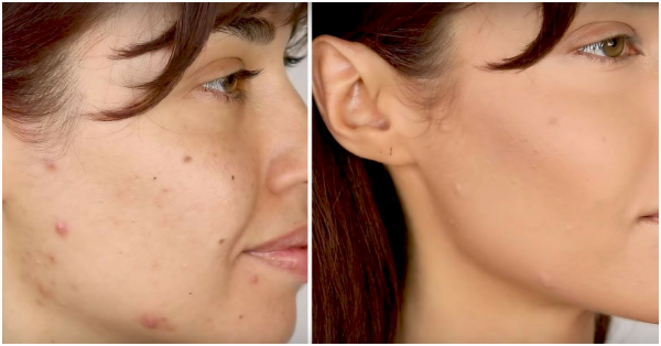 #VideoOfTheDay: This Makeup Routine Is Perfect For Anybody Struggling With Acne!