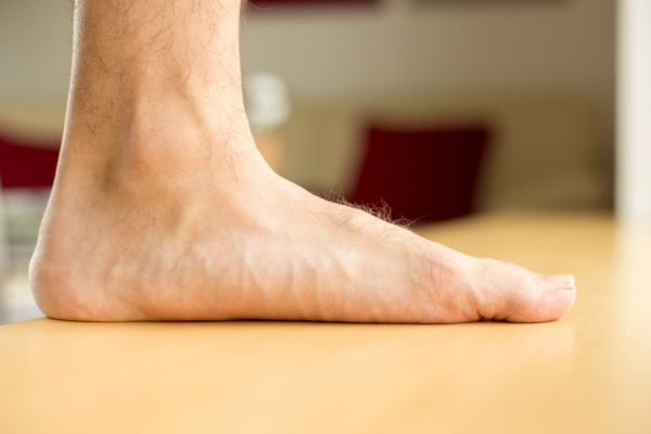 Everything You Need To Know About Having A Flat Foot